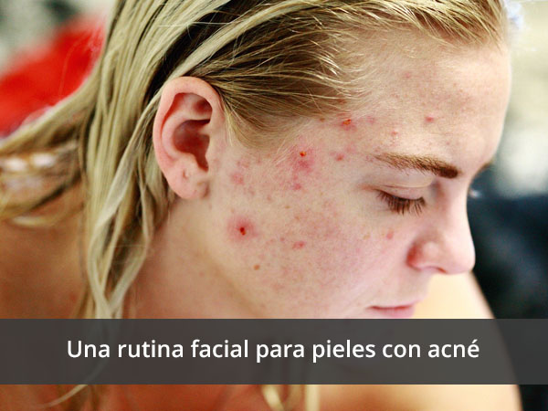 Rutina facial para mujeres de más de 30 años con acné.