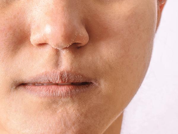 Rutina facial para piel deshidratada y sensibilizada