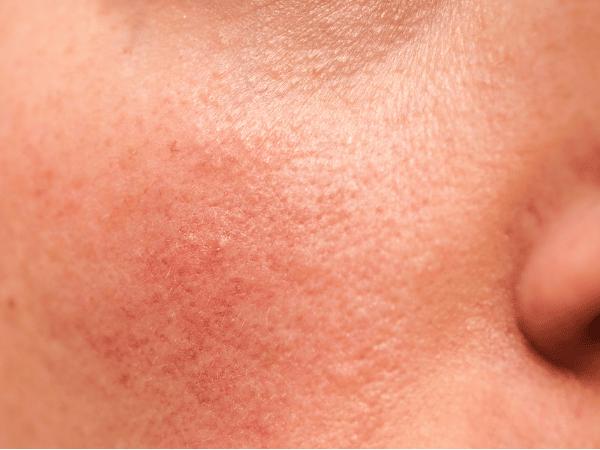 Rutina facial antiedad para piel sensible