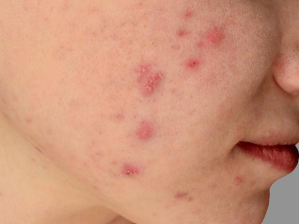 """Resultados del TFM: """"Percepción de la mujer de más de 30 años con acné que consume cosmética natural online para su tratamiento""""."""