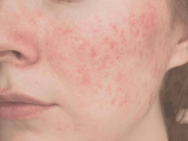 Una rutina facial para pieles con Rosácea